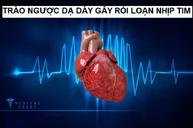Trào ngược dạ dày khiến tim đập nhanh