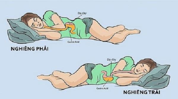 Cách giảm trào ngược dạ dày khi ngủ là nằm ngửa hoặc nghiêng trái, kê cao gối 15cm