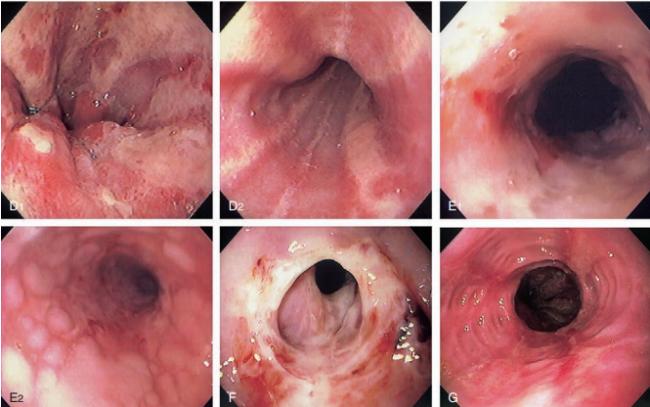 Hình ảnh các trường hợp viêm thực quản do trào ngược dạ dày.